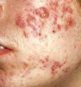 About adult acne