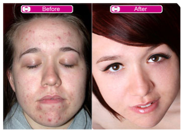 Acne scar treatments best and safe methods to get rid of acne scars treating acne scars before and after treatment ccuart Choice Image