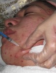 Corticosteroid Injection into acne lesion