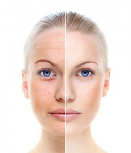 Woman's face - Before and After treatment