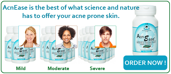 Order AcnEase Today!