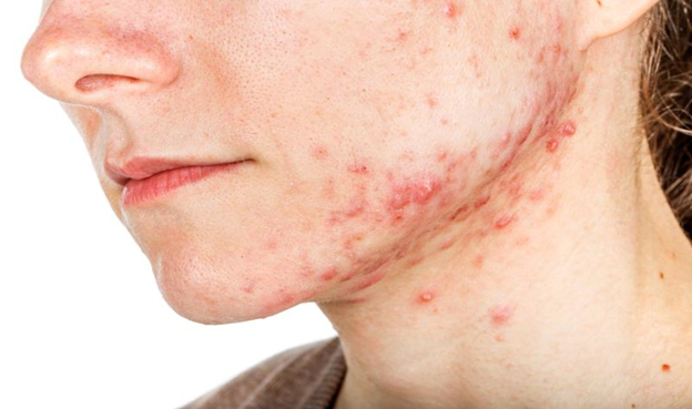 face with acne vulgaris